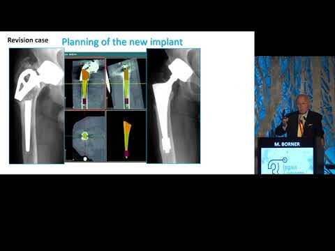 Börner M. - Is there a Benefit-using an Active Robotic System for THA and TKA?