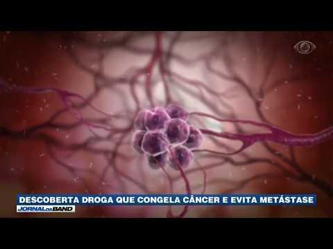 Descoberta droga que congela câncer e evita metástases
