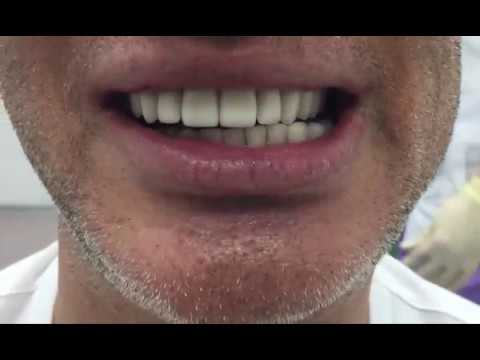 Установка металлокерамической коронки на зуб. Как ставят коронку на зуб