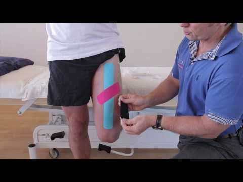 Video How to treat a strain of the Rectus Femoris (Quadricep) muscle using Kinesiology Tape