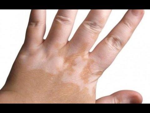 Il fungo di posizione di unghie come trattare calzature