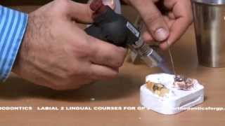 How to Finish an Orthodontic Essix Retainer (Miniature