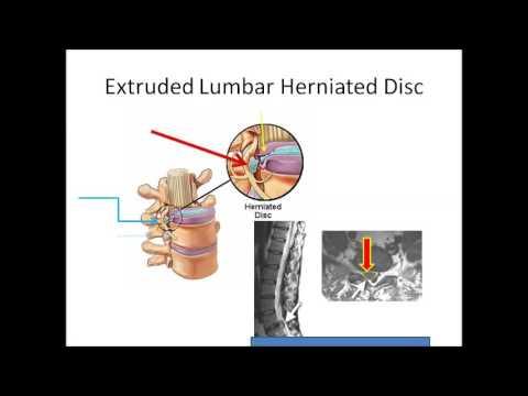 Symptome einer degenerativen Bandscheibenerkrankungen der Brust, wie zu manifestieren