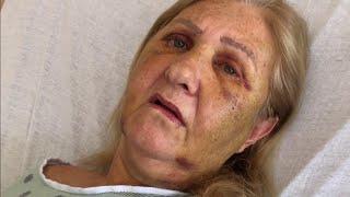 Animal advocate remains hospitalized after brutal attack in Broward
