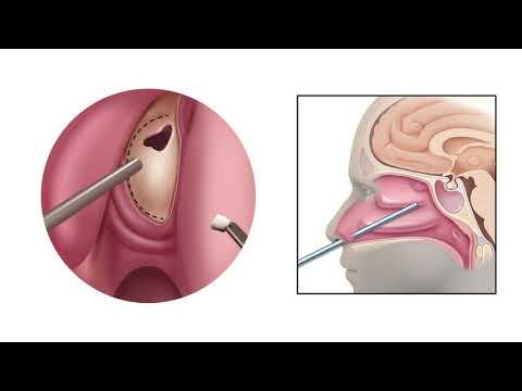 Ranet a prostatitis árából
