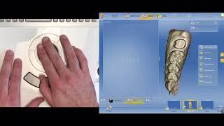 CEREC Dental Assistant Training - Hands On! Hand Position, Rollerball, Scanning!