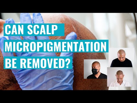 Can Scalp Micropigmentation Be Removed? A Hawaii SMP Practitioner Explains