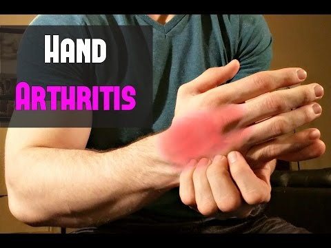 Fast Treatment for Hand Arthritis ~ Self Massage!