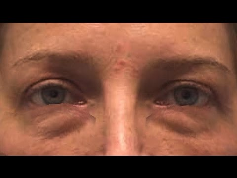 Натуральное средство для глаз против морщин