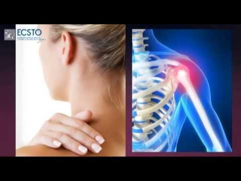 Гимнастика для грудного отдела при остеохондрозе видео