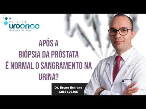 O papel do corpo próstata