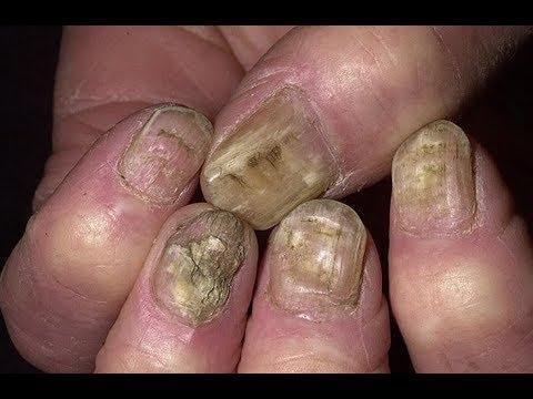 Wie die Nägel mit gribkom zu reinigen
