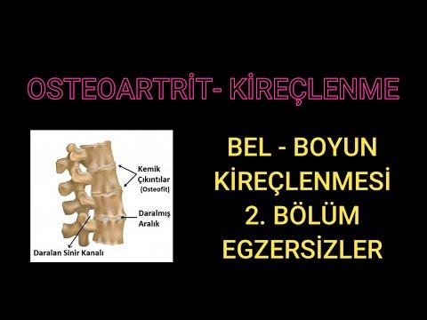 Artrita reumatoidă a medicației articulației genunchiului