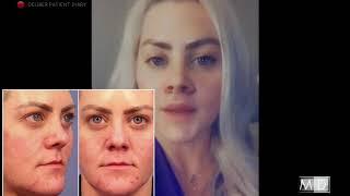 Lip Lift: Surgery & Recovery
