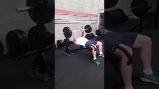 Bench Press Post Pec Surgery