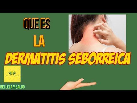 Los preparados naturales para el tratamiento de la psoriasis