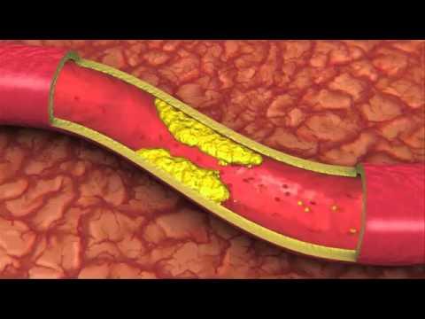 Anticoagulants ที่ดีขึ้นจากเส้นเลือดขอด