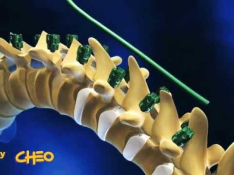Siccome è corretto per sedersi a una curvatura di spina dorsale