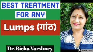 How To Cure Lump (गांठ) | Natural Treatment For Body Knots  Acupressure Home Remedies In Hindi Video