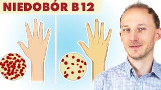 Niedobór witaminy B12: ukryta przyczyna chorób i dolegliwości! Witamina B12 | Dr Bartek Kulczyński