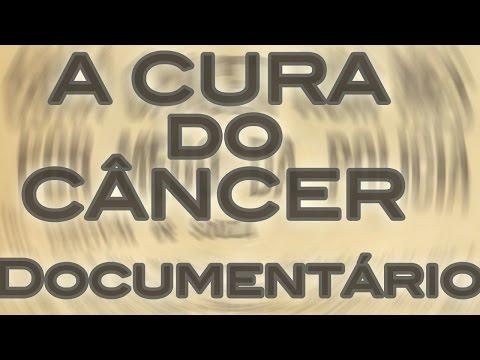 HIFU tratamento de cancro da próstata