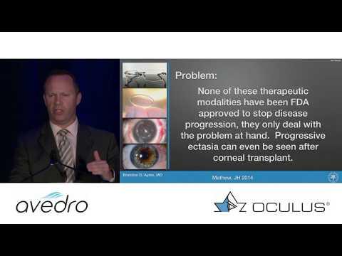 Glaukóma, hogyan lehet javítani a látást