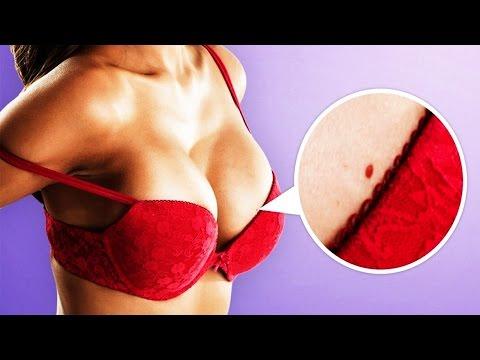 El ajuste del pecho sin operación en