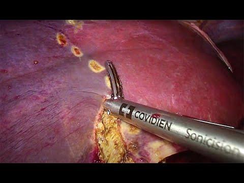 Hemihepatektomia prawostronna metodą laparoskopową - szycie żyły głównej dolnej, krwawienie z miąższu wątroby