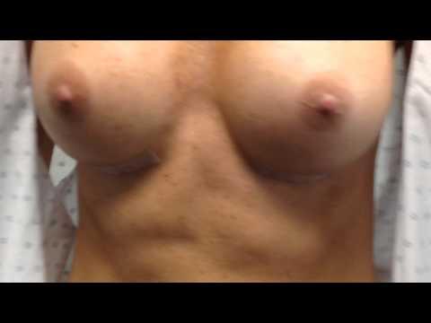 Les appliques silicones pour la poitrine à ekaterinbourge