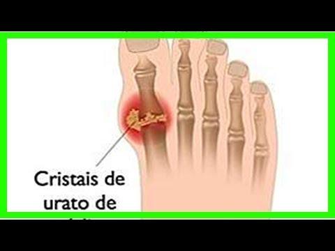 Behandlung von Epicondylitis des Ellbogengelenkes