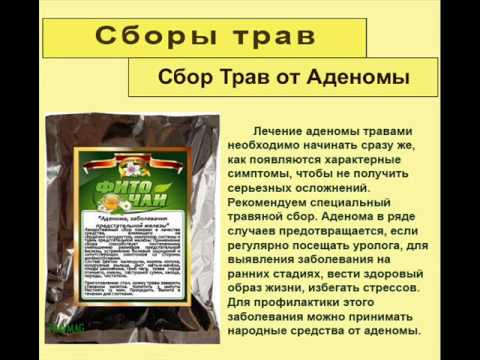 Массаж простаты у частных лиц москва
