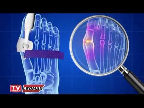 Деформация пальца на ноги