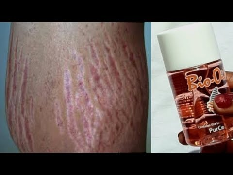 Use Only One Oil Get Rid Of Stretch Marks Fast - Editorial