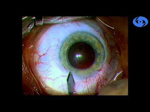 Лазерная коррекция зрения ограничения до и после операции