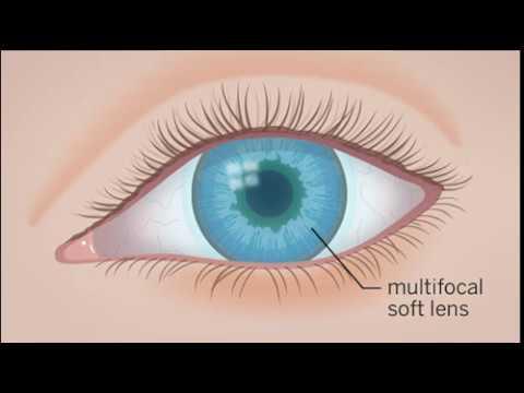 Всд ухудшение зрения на один глаз