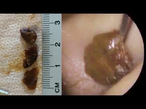 Difficult Ear Wax Removal from Both Ears - #440