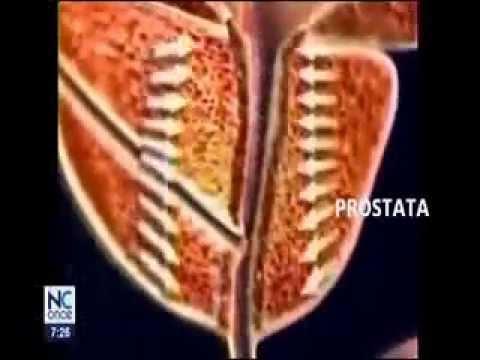 Masowania masażer prostaty
