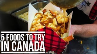 5 FOODS TO TRY IN CANADA + CANADIANS SAYING SORRY | Eileen Aldis