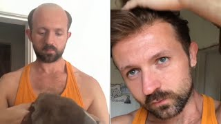 Hair System Tutorial: How to Attach and Style a Men's Hair System | Lordhair