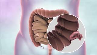 What is bowel cancer? | Cancer Research UK