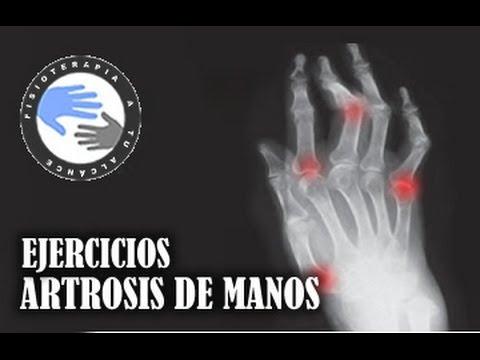 Artrosis De Manos: Ejercicios Para Aliviar El Dolor