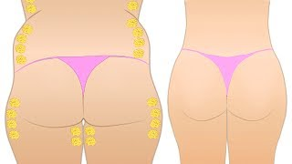 How To Reduce Buttocks Fat with 5 Moves for Your Butt, Hips and Thighs!