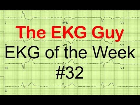 EKG of the Week #32