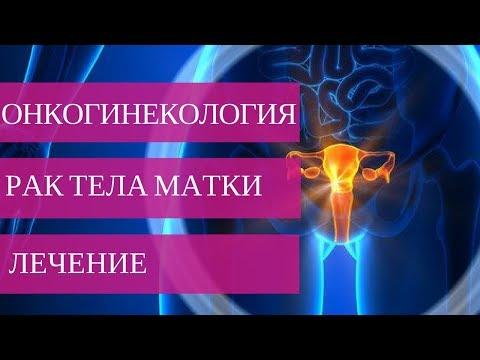 Рак тела матки. Лечение - фото 1
