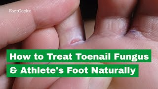 How to Treat Toenail Fungus & Athlete's Foot Naturally