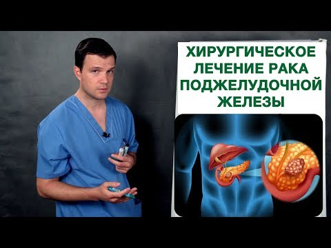 Хирургическое лечение рака поджелудочной железы. Врач-онколог Владимир Лядов.