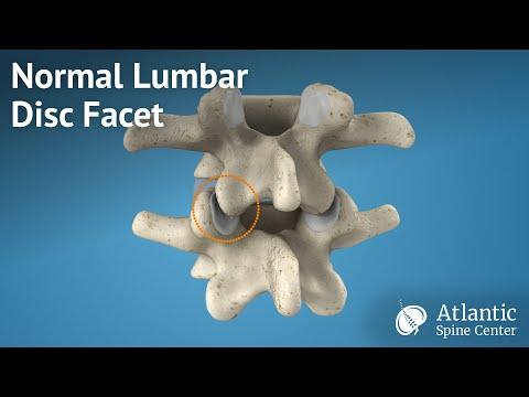 Pomata per il dolore alla schiena hondroksid