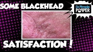 Getting Some Blackhead Satisfaction