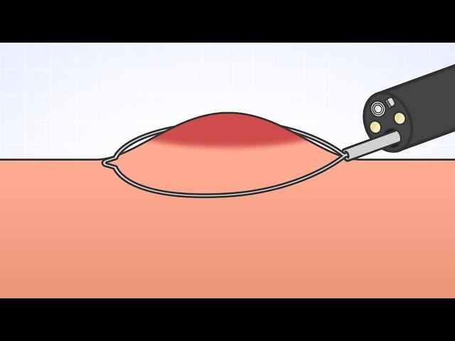 「EMR:内視鏡的粘膜切除術」(オリンパス「おなかの健康ドットコム」)