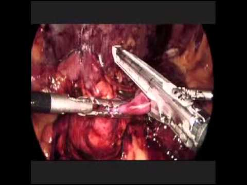 Duct papilloma microdochectomy